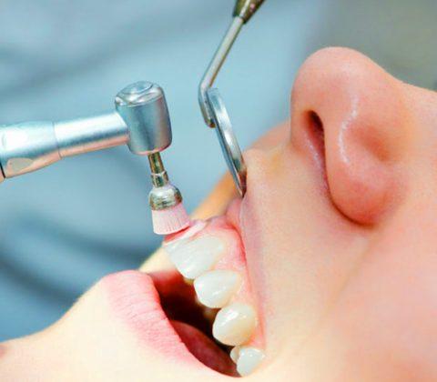 καθαρισμός δοντιών