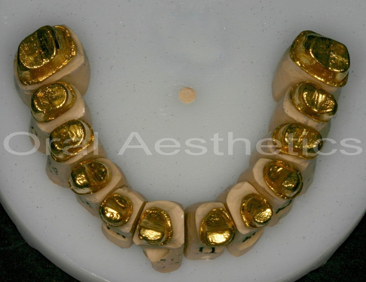 μεταλλοκεραμικές στεφάνες και γέφυρες - γαλβανισμένο χρυσό