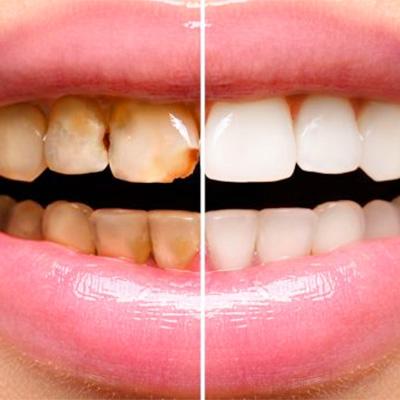 αποκαταστατική οδοντιατρική