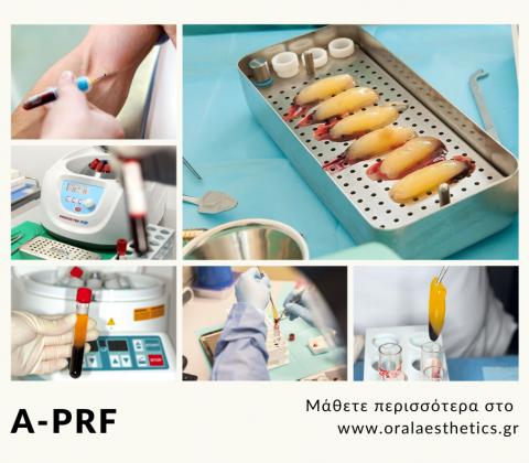 ο Advanced – PRF (a-prf) είναι τεχνολογία δεύτερης γενιάς που επιτρέπει την συλλογή του ινώδους πλούσιου σε αιμοπετάλια χωρίς την χρήση πρόσθετων μέσων, όπως αντιπηκτικών και βόειας θρομβίνης, που χρησιμοποιούνταν τα προηγούμενα χρόνια. Έτσι χρησιμοποιείται μόνο το αίμα του ασθενή, χωρίς κίνδυνο μεταφοράς ασθενειών ή εμφάνιση αλλεργιών λόγω των πρόσθετων παραγόντων.