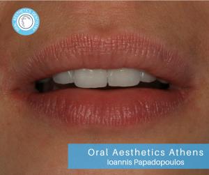 Στο συγκεκριμένο περιστατικό έγινε τοποθέτηση ολοκεραμικών στεφανών σε συνεργασία με το οδοντοτεχνικό εργαστήριο Dental Aesthetics- Michalis Papastamos .